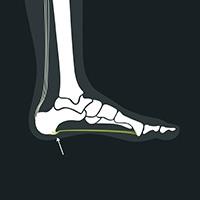 Hælspore under foden